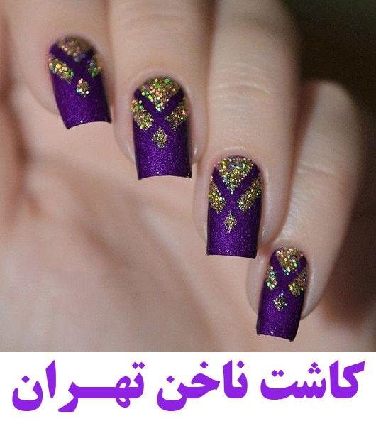 بهترین کاشت ناخن غرب تهران