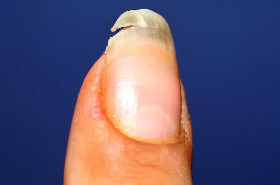 علل شکستگی کاشت ناخن چیست؟